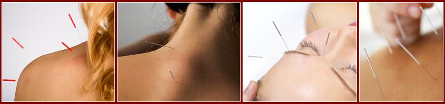 acupuncture-02