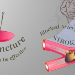 acupuncture treatment for a stroke