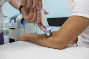 treating elbo with shockwave therapy